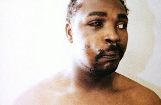 rodney_king_after_police_beating.jpg