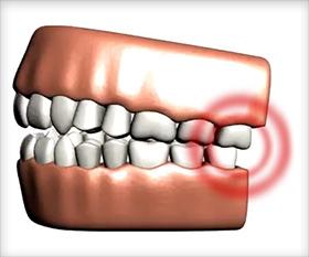 comment soulager une douleur dentaire