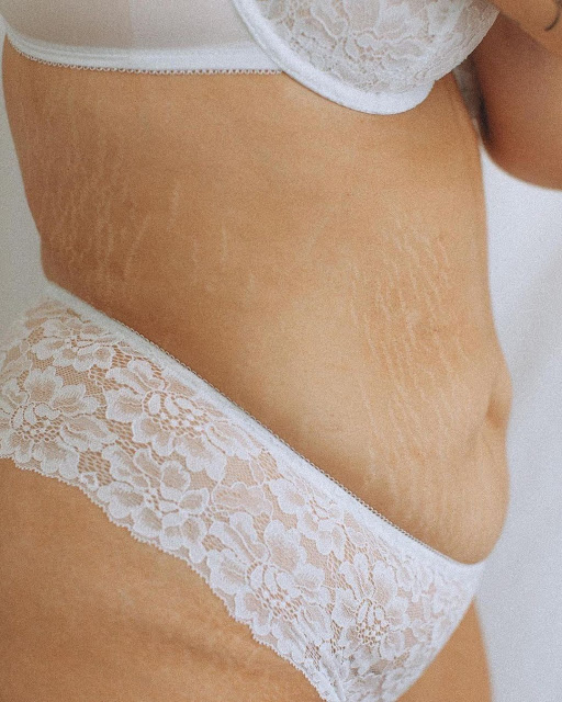 Astuces pour prévenir l'apparition des vergetures lors de la perte de poids