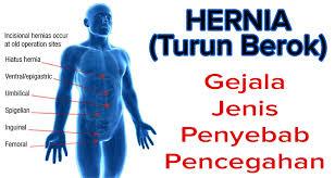 Obat Hernia Ampuh Tanpa Operasi