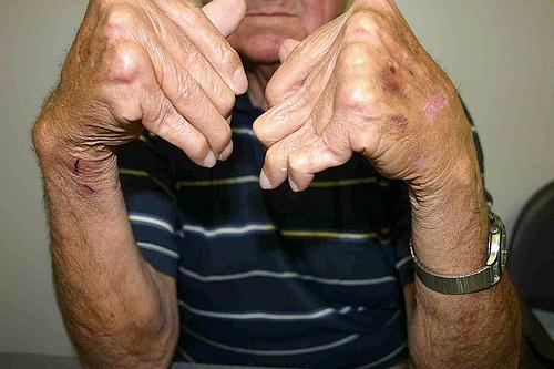 Inilah Jenis-Jenis Penyakit Autoimun Dan Cara Pengobatan Yang Benar