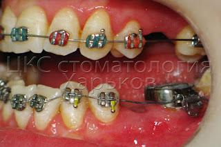 Фото зуба с зафиксированным ортодонтическим кольцом
