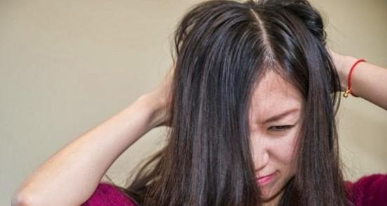 Cara Alami Menghilangkan Kutu Rambut dan Telurnya dengan Cepat