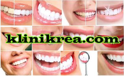 12 Cara Alami Memutihkan Gigi