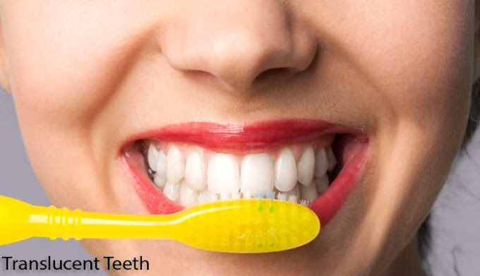 Best Solution for Translucent Teeth