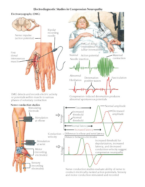 ELECTROMYOGRAPHY AND CONDUCTION VELOCITY STUDIES
