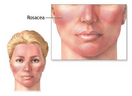 dermatologia acne rosacea