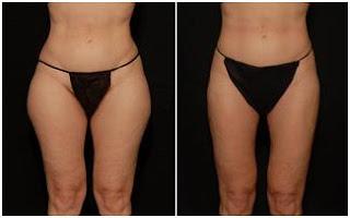 laser Liposuction Minneapolis - liposuction minneapolis