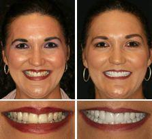 dental implants cost 1000 USD HCMC Vietnam nha khoa Thuan Kieu 2002 before after