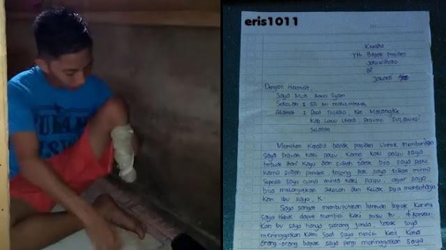 Viral Surat dari Bocah SD di Luwu Utara Minta Tangan dan Kaki Palsu pada Jokowi, Begini Kondisinya
