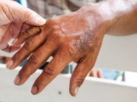 Mari Bersatu Pemberantasan Kusta di Tengah Pandemi