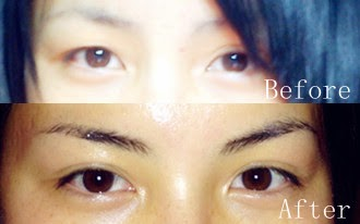 Live This Way: How I got my double eyelids permanently