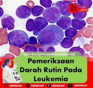 Pemeriksaan Darah Rutin Pada Leukemia 1