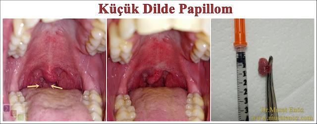 Küçük dilde papillom - Küçük dilde papillom belirtileri - Küçük dilde papillom  nasıl anlaşılır? - Uvulada papillom - Küçük dilde siğil - tedavisi - Küçük dilden papillom rezeksiyonu - Küçük dilde papillom tedavisi - Küçük dilde papillom ameliyatı - Ağızda papillom siğil - Ağızda HPV enfeksiyonu - İnsan papilloma virüsü - HPV virüsü - Ağızda HPV enfeksiyonu