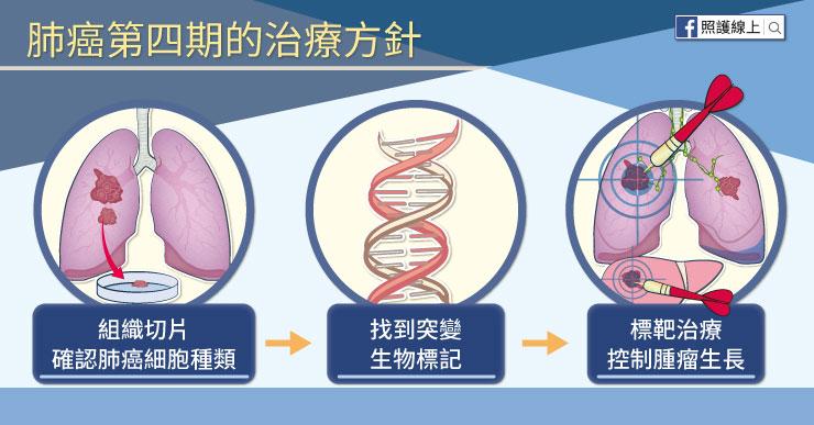 肺癌第四期治療方針