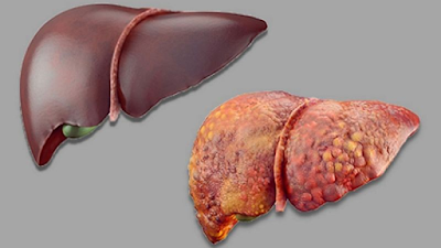 acute liver failure complication