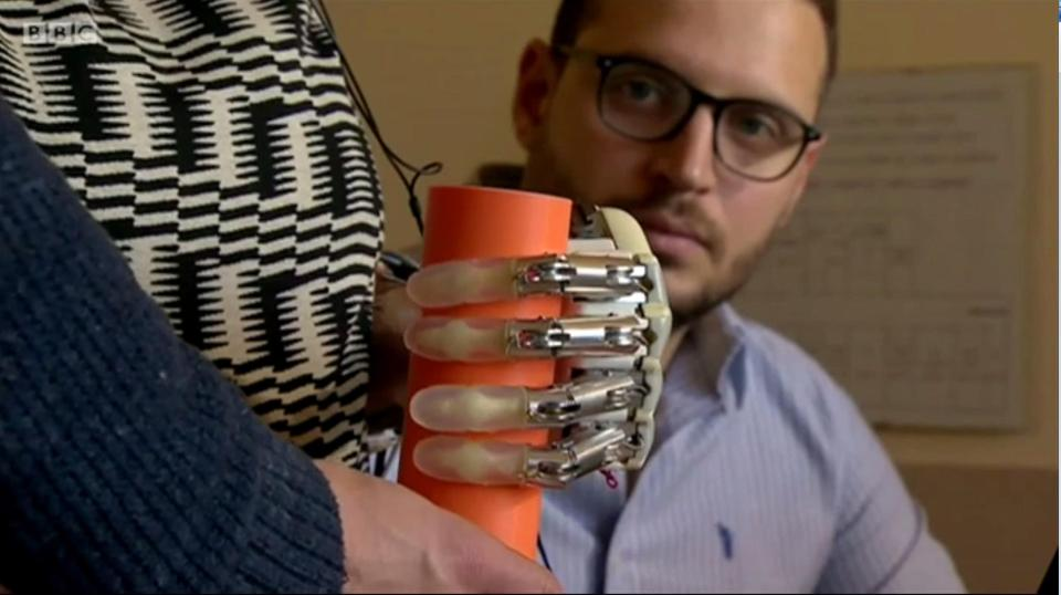 Bionic Hand Allows User to Feel What She Touches