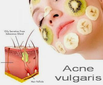 Quick Ways to Get Rid of Acne Naturally