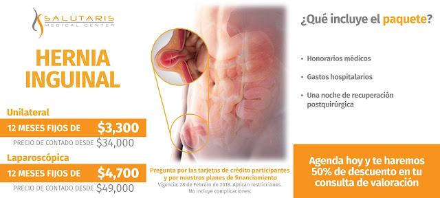 Cirugia de Hernia Inguinal en Guadalajara