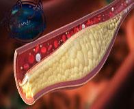 فهد الطبية تقدم نصائح لمنع ارتفاع نسبة الكوليسترول