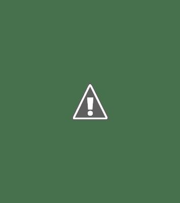 ramsay hunt syndrome treatment