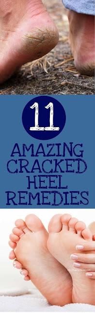 11 AMAZING CRACKED HEEL REMEDIES