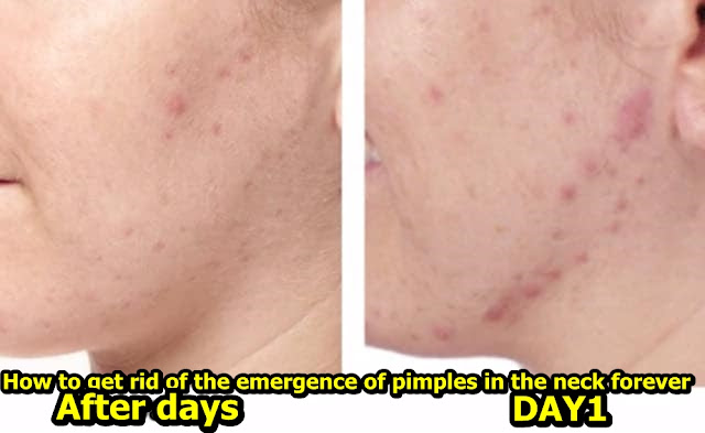 How to get rid of the emergence of pimples in the neck forever