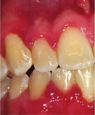 Gingivitis in an adolescent characterized by erythematous and edematous gingiva.