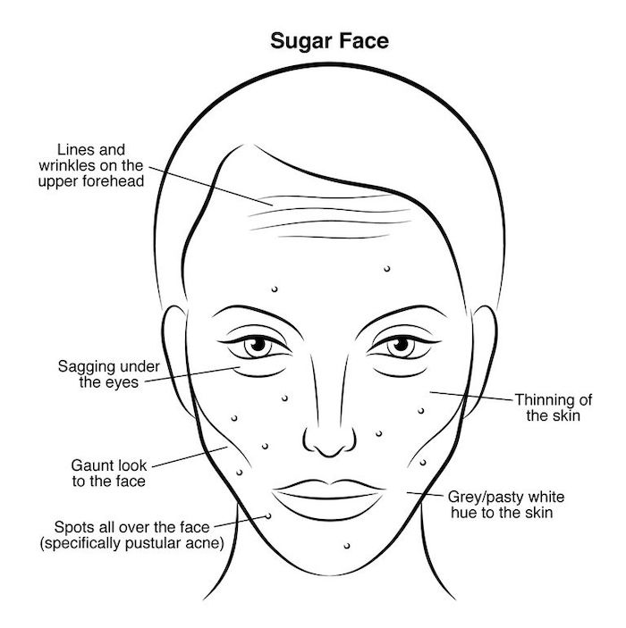 How Sugar Ages Your Skin, How Sugar Damages Your Skin, The Effects Of Sugar On Your Skin, Why Sugar Is Bad For Your Skin