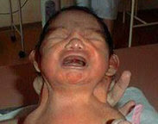 Fotografía de una niña con síndrome de Turner
