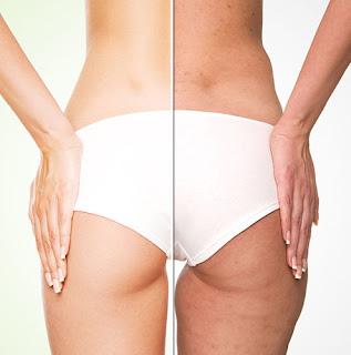 La cellulite : Types, causes et traitements