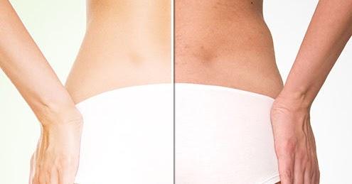 La Cellulite Types Causes Et Traitements