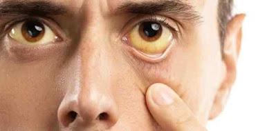 إصفرار العين يشير الى مرض خطير