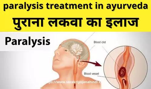 पुराना लकवा का इलाज-paralysis treatment in ayurveda