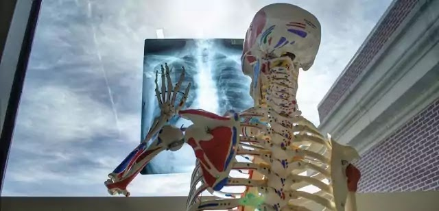 What is X-ray? Explained
