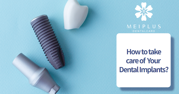 HOW TO TAKE CARE OF YOUR DENTAL IMPLANTS?