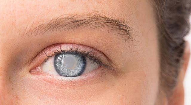 Pengobatan Glukoma dengan mata minus 14