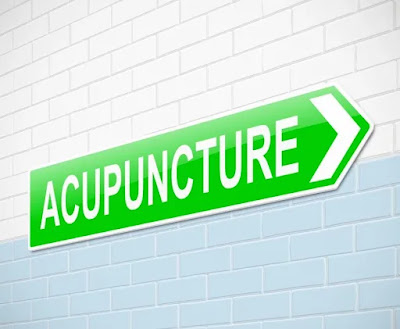 LBC - lower back pain - Accupuncture