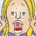 6 Faktor Kebiasaan Kurang baik Penyebab Munculnya Jerawat di Wajah