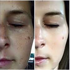 Dark Spots On Face Treatment, Creams and Home Remedies
