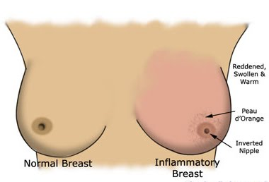 Seems Iv inflammatory breast cancer