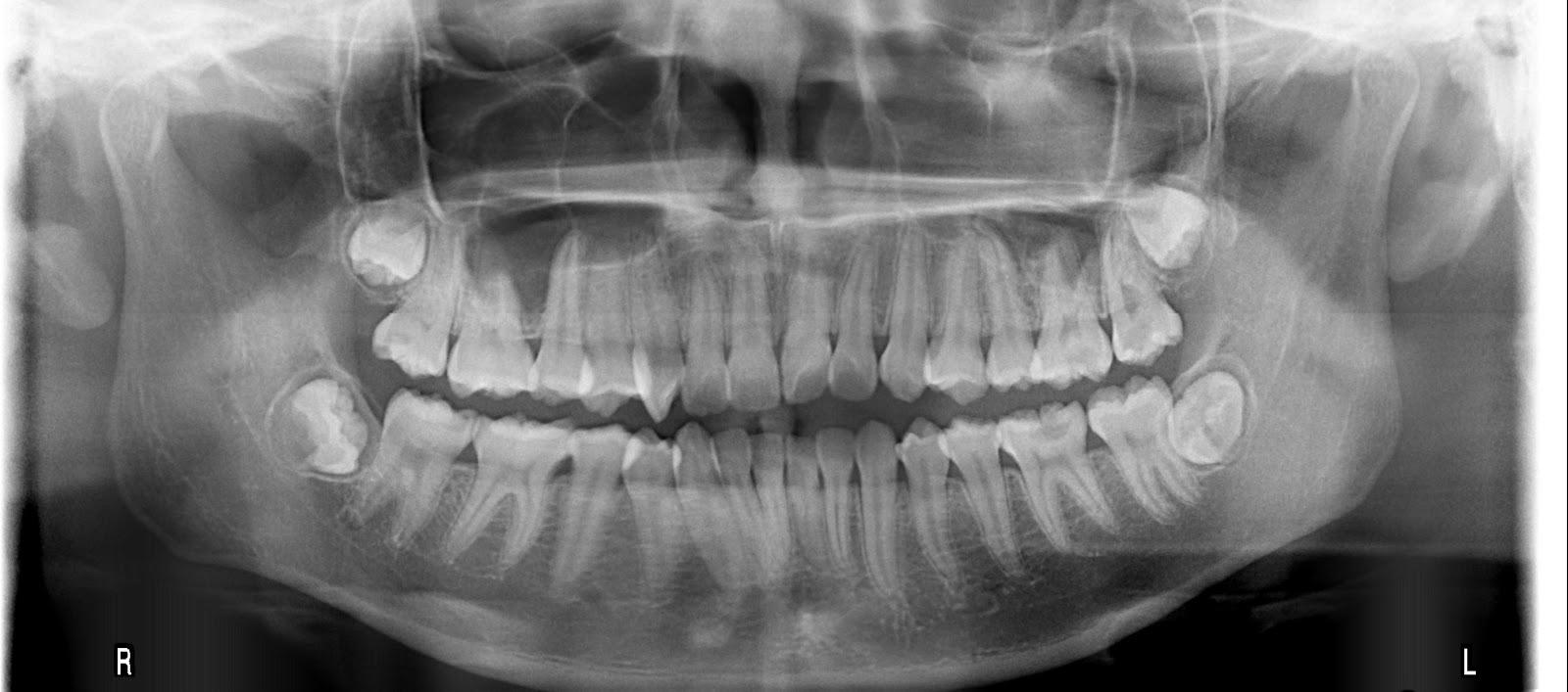 宏 興 牙 醫 診 所: 智齒一定要拔嗎?