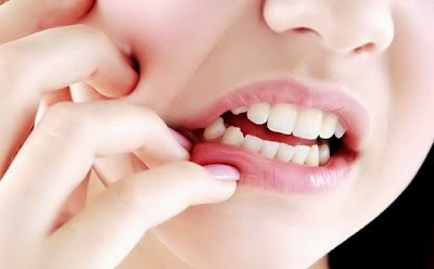 Cara ampuh menyembuhkan sakit gigi berlubang dengan menggunakan bawang putih