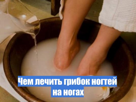 Грибок ногти на ногах чем лечить дома