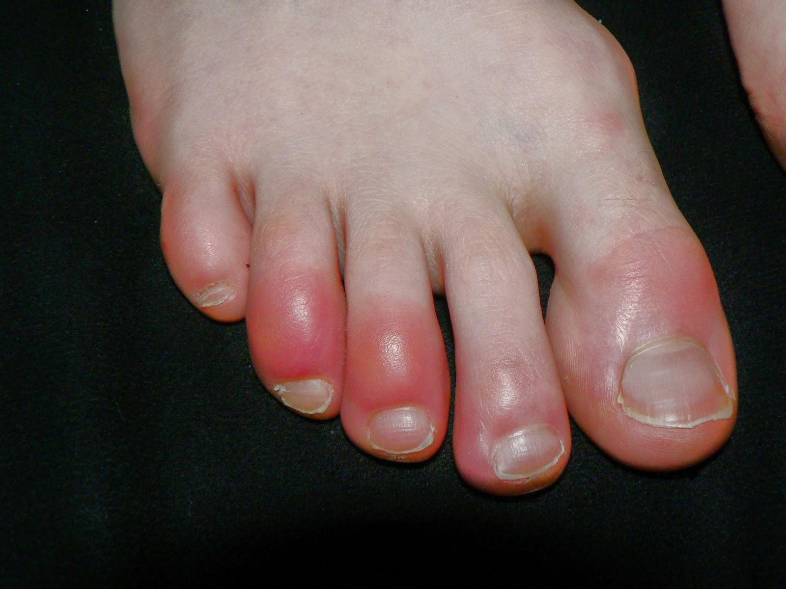 tratamiento casero hongos en los pies