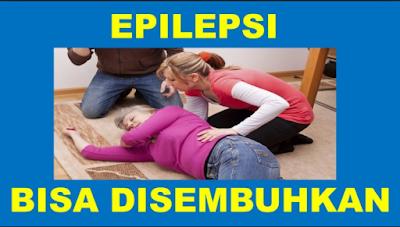 Apakah epilepsi bisa disembuhkan total?