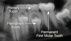 TREATMENT FOR DENTAL IMPACTION [TOOTH IMPACTION]