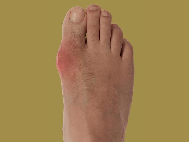 Comment traiter le mal du gros orteil