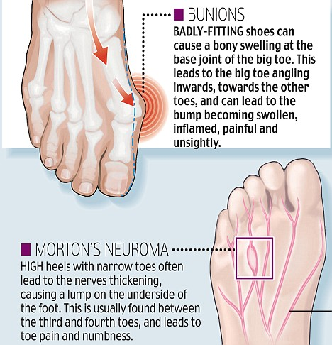 Bunion Girls Shoe Related Foot Problems Illustrated