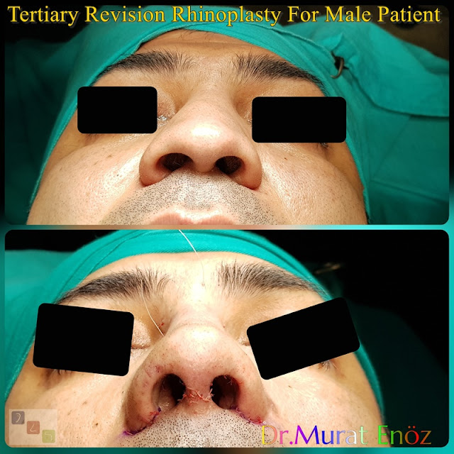 Tertiary Revision Rhinoplasty For Male Patient - Alar Base Resection - 3rd Revision Nose Job With Cadaveric Rib Cartilage - Revision Nose Aesthetic Doctor in Istanbul